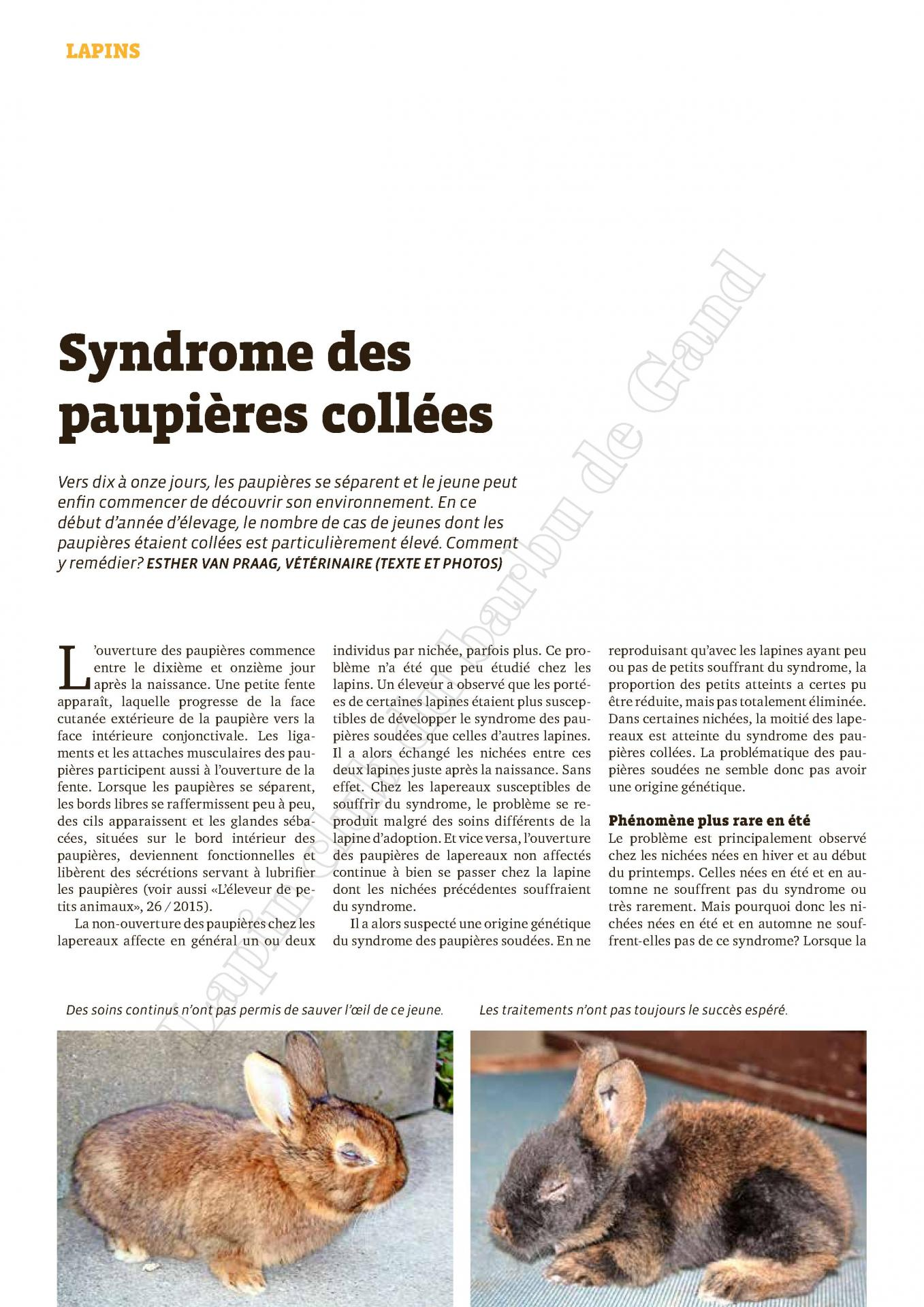 Syndrome des paupieres collees 1